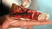 נעל הפעוטה שנפצעה מפגיעת באשקלון ב-14 במאי (צילום: אדי ישראל)
