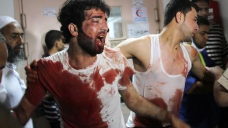 בית-החולים נאסר בעזה לאחר הפצצה באזור חאן-יונס, 23.7.14 (צילום: עבד אחים ח'טיב)