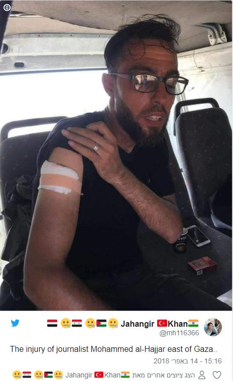"""הצלם מוחמד אל-חאג'ר לאחר שנפצע קל מירי כוחות צה""""ל"""