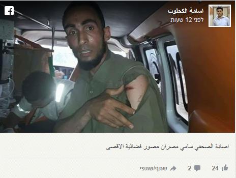 הצלם סמי מאסרן, שנפגע מכדור מתכת מצופה גומי ששרט את כתפו