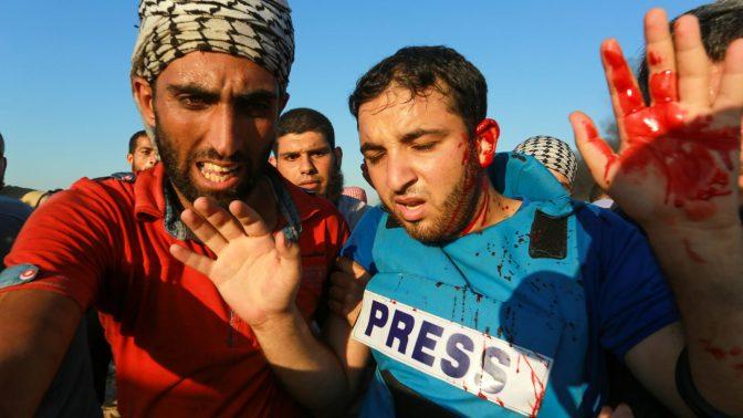 צלם העיתונות הפלסטיני מחמוד אל-ג'מאל מובל לטיפול רפואי לאחר שנפצע מרסיסים סמוך לרפיח, 10.8.2018 (צילום: עבד רחים ח'טיב)
