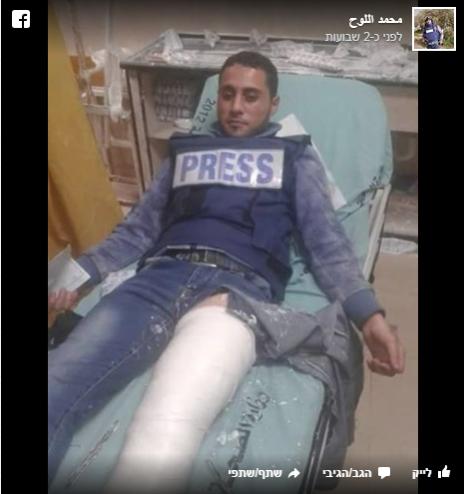 הצלם מוחמד אל-לוח, שקרסולו התרסק מפגיעת רימון גז, לאחר שקיבל טיפול בבית-חולים בעזה